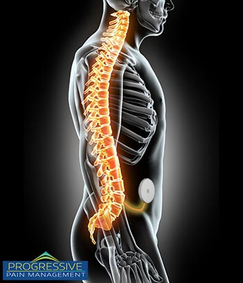 An intrathecal pump is implanted under the skin in that abdomen and delivers medication directly to the spine.